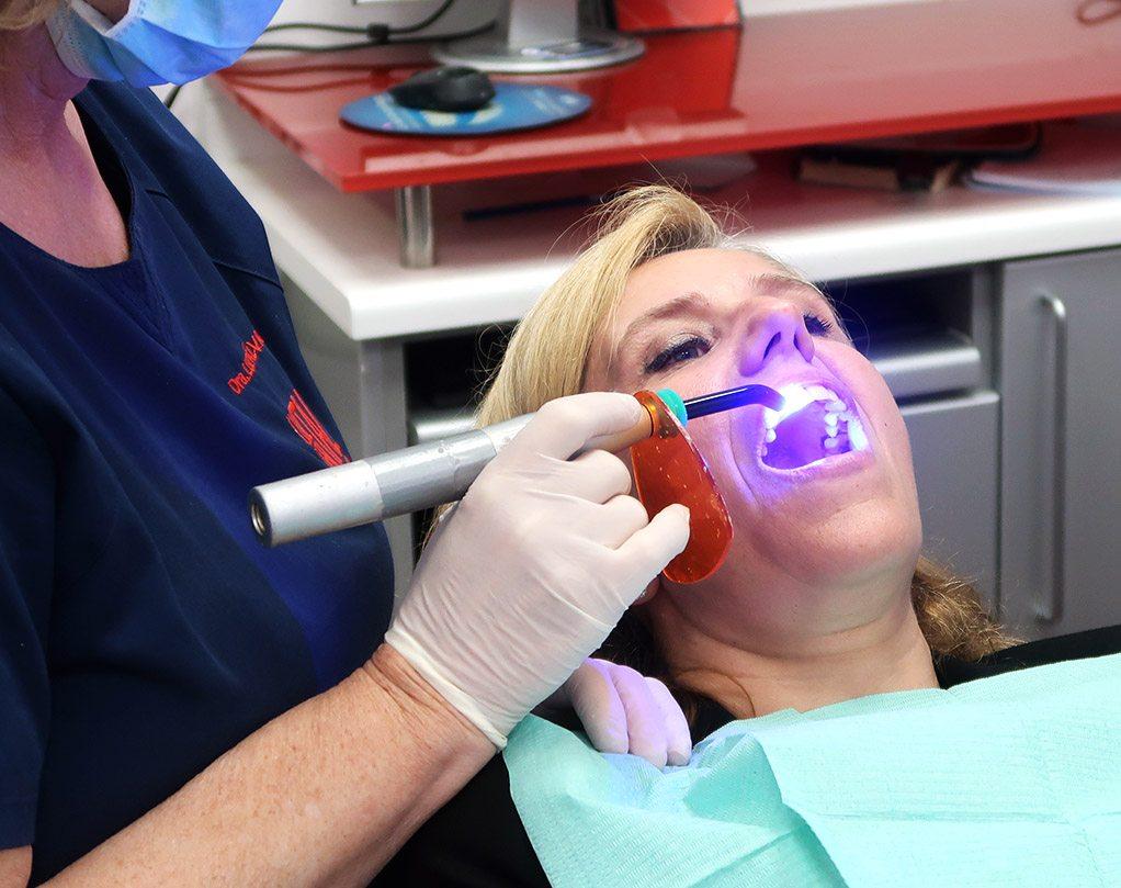 Estetica Dental en Avilés