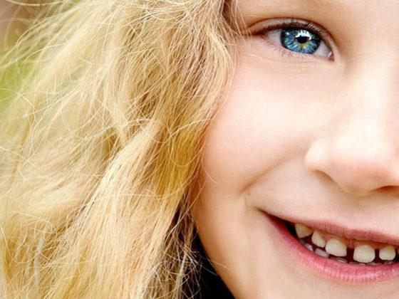 dientes separados ¿qué hacer? Tratamiento por dentistas en Avilés
