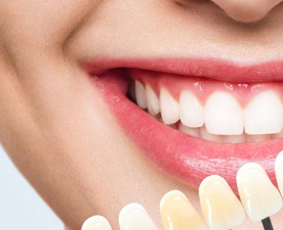 remedios para los dientes amarillos. Clínica dental en Avilés