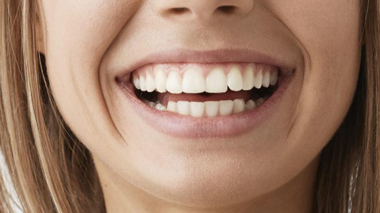 Carillas dentales clínica dental en Avilés