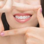 Luz Dental. Nunca es tarde para ponerse ortodoncia para adultos